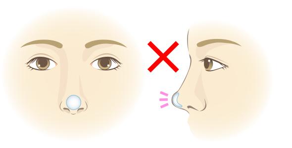 酸 鼻 ヒアルロン ヒアルロン酸による鼻整形の効果!失敗のデメリット・後遺症まとめ